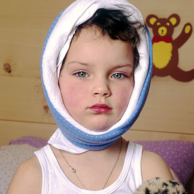 Ziegenpeter kinderkrankheit